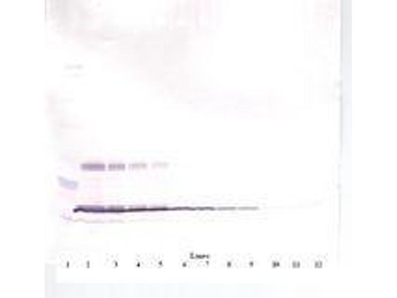 image for anti-Leptin antibody (LEP) (ABIN465757)