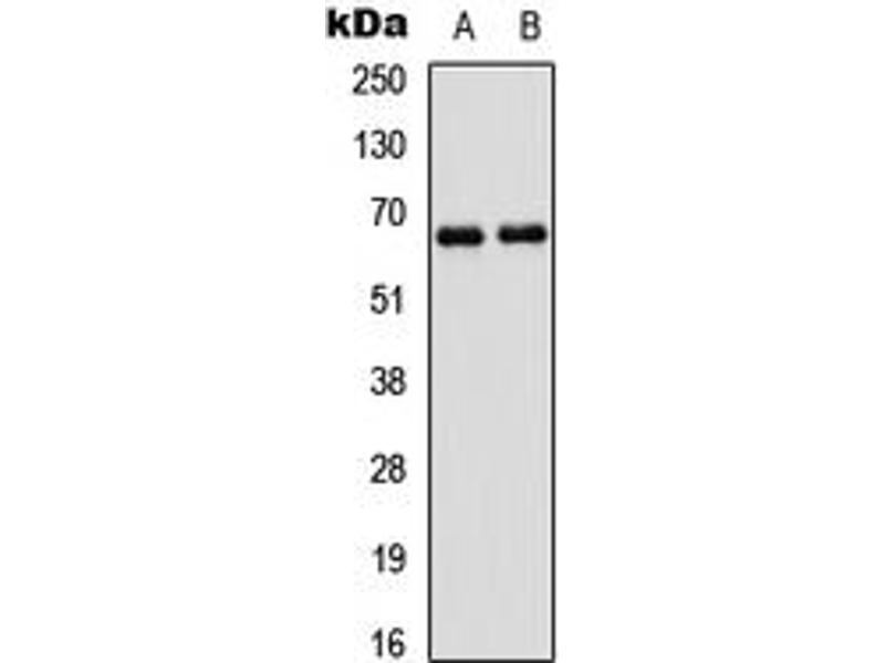 Western Blotting (WB) image for anti-P21-Activated Kinase 1 (PAK1) (Center) antibody (ABIN2706763)