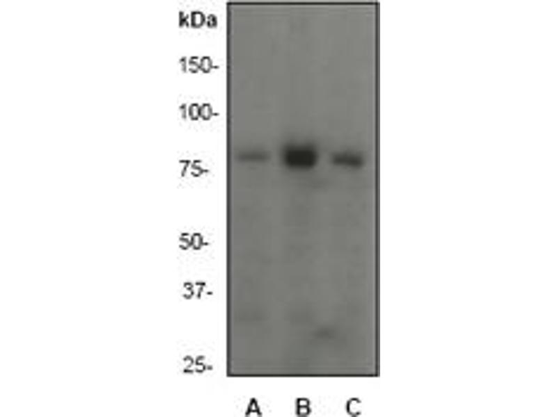 Western Blotting (WB) image for anti-PI3 Kinase P85 alpha (C-Term) antibody (ABIN189672)