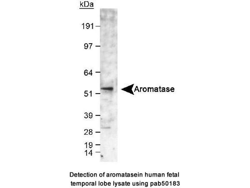 image for anti-Cytochrome P450, Family 19, Subfamily A, Polypeptide 1 (CYP19A1) (C-Term) antibody (ABIN1731953)