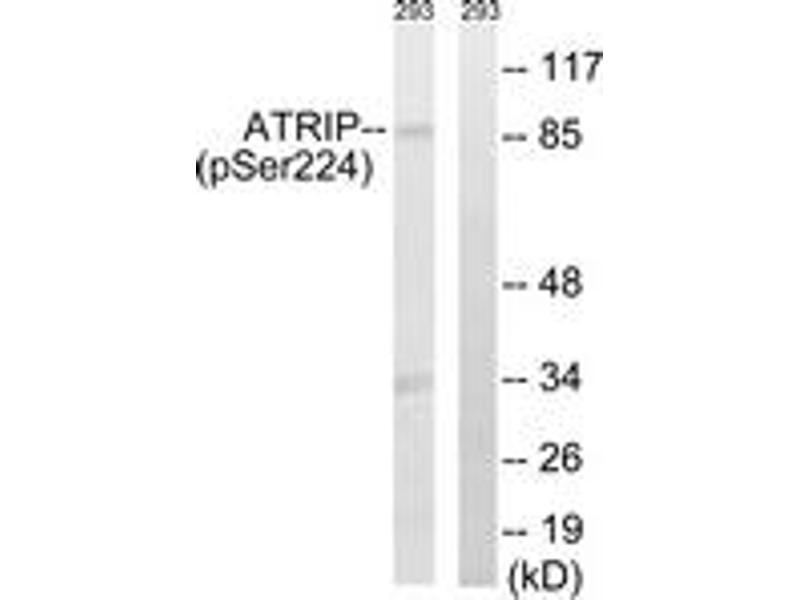 Western Blotting (WB) image for anti-ATR Interacting Protein (ATRIP) (AA 190-239), (pSer224) antibody (ABIN1532124)