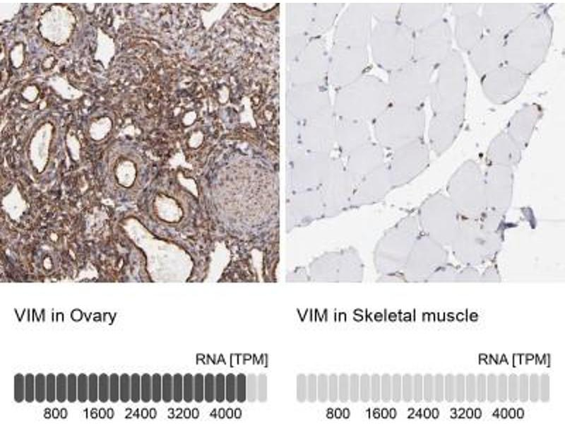 Immunohistochemistry (Paraffin-embedded Sections) (IHC (p)) image for anti-Vimentin (VIM) antibody (ABIN4365306)