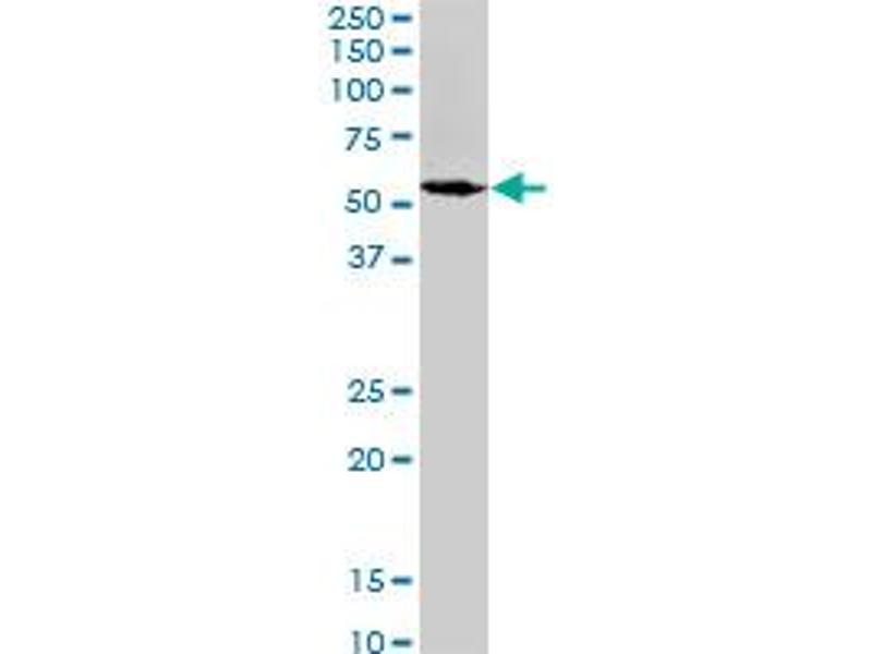 Western Blotting (WB) image for anti-Spastin (SPAST) (AA 200-304), (partial) antibody (ABIN520426)