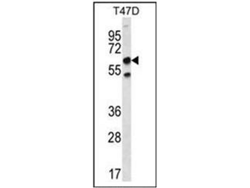 Western Blotting (WB) image for anti-SCP2 antibody (Sterol Carrier Protein 2) (AA 13-43) (ABIN954693)