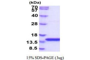 Image no. 1 for Cystatin B (Stefin B) (CSTB) (AA 1-98) protein (His tag) (ABIN666707)
