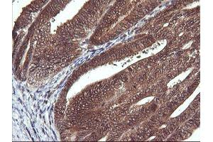 Image no. 4 for anti-D-Dopachrome Tautomerase (DDT) antibody (ABIN1497795)