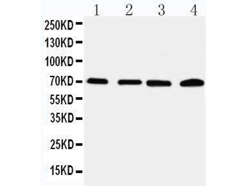 Western Blotting (WB) image for anti-Interleukin-1 Receptor-Associated Kinase 2 (IRAK2) (AA 600-616), (C-Term) antibody (ABIN3044473)