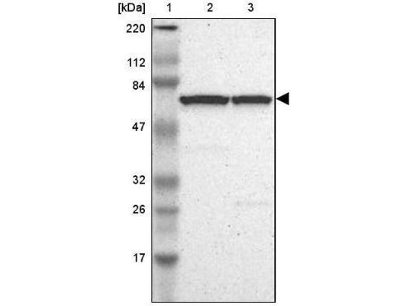 Western Blotting (WB) image for anti-Baculoviral IAP Repeat Containing 2 (BIRC2) antibody (ABIN4298713)