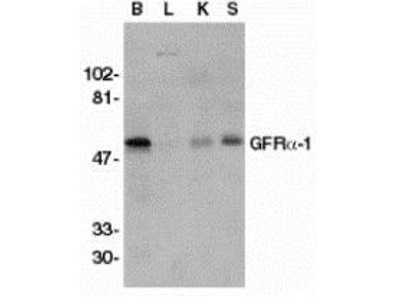 Western Blotting (WB) image for anti-Glial Cell Line Derived Neurotrophic Factor Family Receptor alpha 1 (GFRA1) (Intermediate Domain) antibody (ABIN499883)