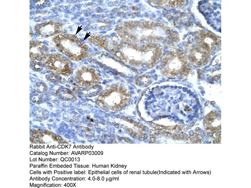 Immunohistochemistry (IHC) image for anti-CDK7 antibody (Cyclin-Dependent Kinase 7) (C-Term) (ABIN406738)