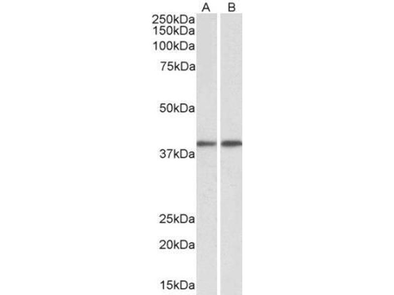 Western Blotting (WB) image for anti-GNAQ antibody (Guanine Nucleotide Binding Protein (G Protein), Q Polypeptide) (ABIN4315225)