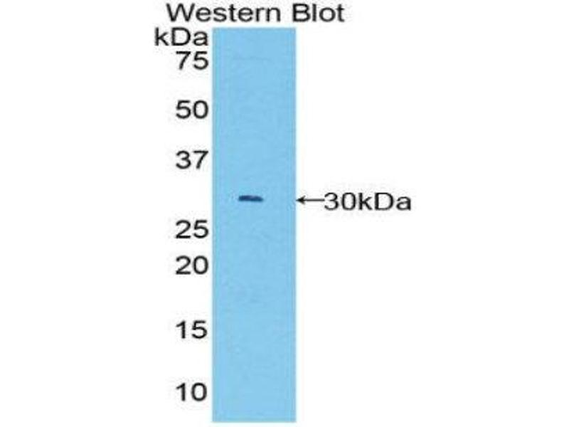 Western Blotting (WB) image for anti-B-Cell CLL/lymphoma 3 (BCL3) (AA 127-376) antibody (ABIN1858125)