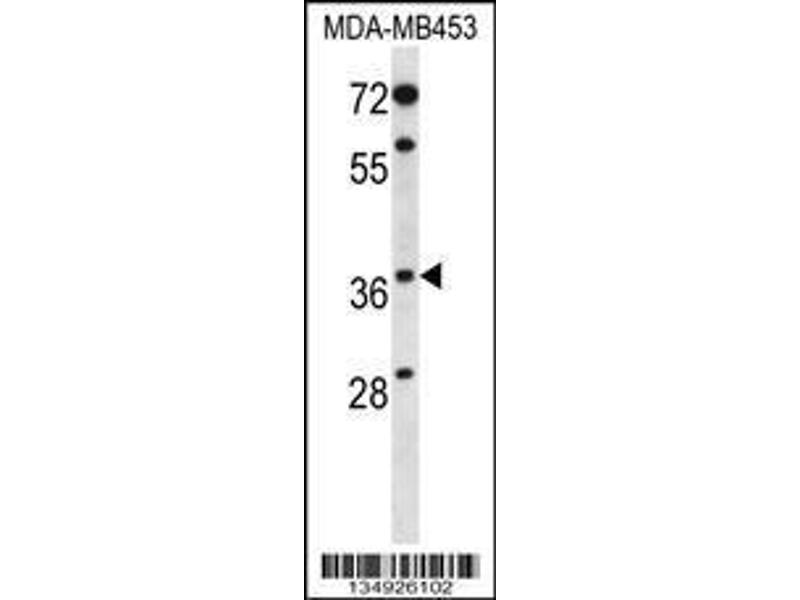 Western Blotting (WB) image for anti-Progestin and AdipoQ Receptor Family Member VIII (PAQR8) (AA 326-354), (C-Term) antibody (ABIN658769)