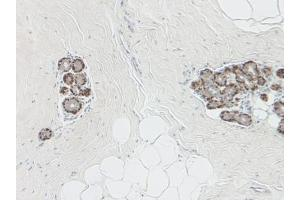 Immunohistochemistry (Paraffin-embedded Sections) (IHC (p)) image for anti-serpin Peptidase Inhibitor, Clade B (Ovalbumin), Member 5 (SERPINB5) antibody (ABIN487960)