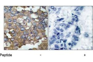 Image no. 2 for anti-Nuclear Receptor Coactivator 1 (NCOA1) (Tyr529) antibody (ABIN197376)