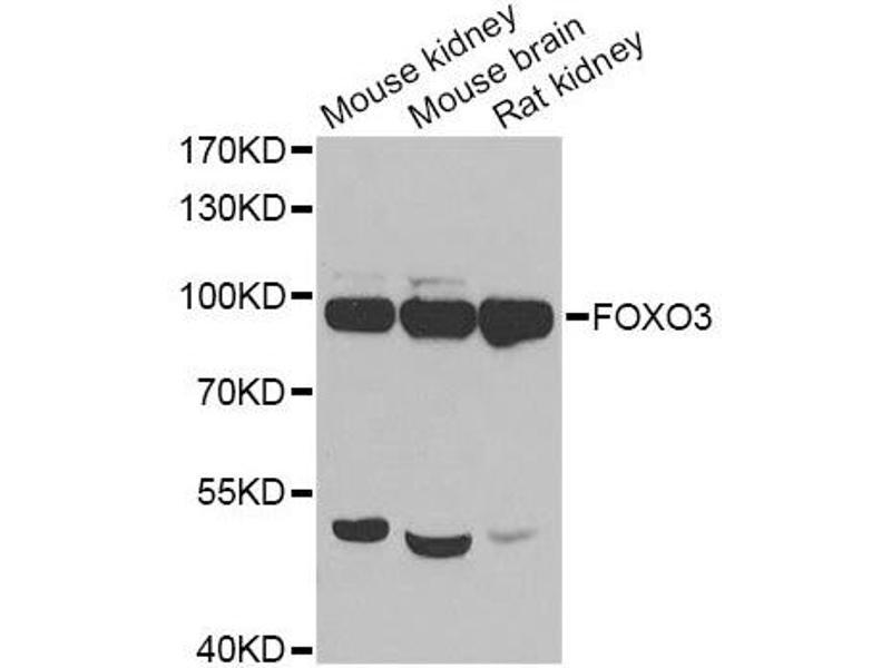Western Blotting (WB) image for anti-Forkhead Box O3 (FOXO3) antibody (ABIN6680365)