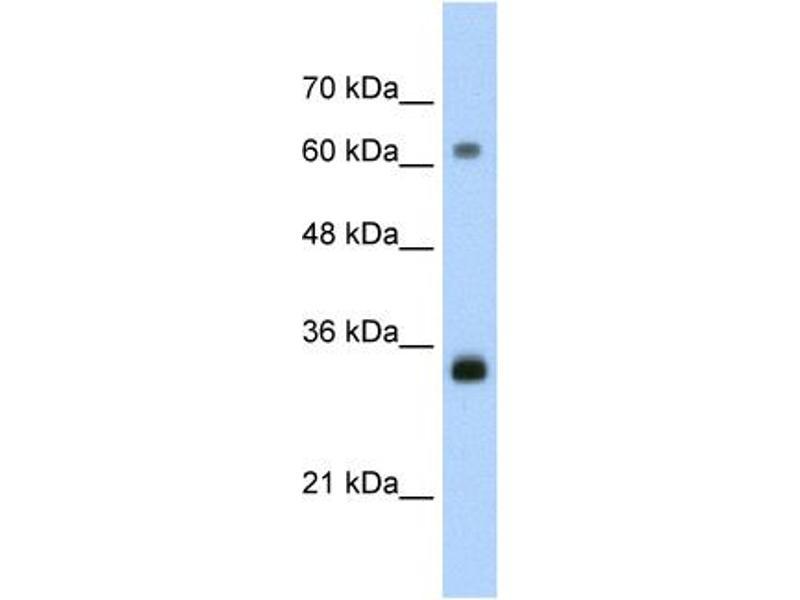 Western Blotting (WB) image for anti-PCNA antibody (Proliferating Cell Nuclear Antigen) (C-Term) (ABIN184165)