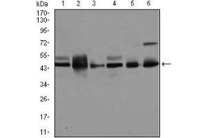 Western Blotting (WB) image for anti-JNK antibody (Mitogen-Activated Protein Kinase 8) (ABIN969537)