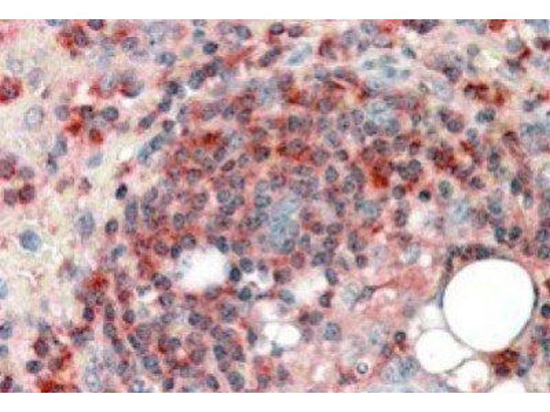 Immunohistochemistry (Paraffin-embedded Sections) (IHC (p)) image for anti-Actin Related Protein 2/3 Complex, Subunit 2, 34kDa (ARPC2) (C-Term) antibody (ABIN249530)