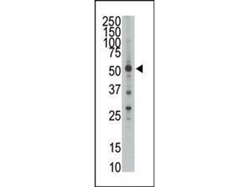 Western Blotting (WB) image for anti-HtrA Serine Peptidase 1 (HTRA1) (AA 116-147), (N-Term) antibody (ABIN388127)