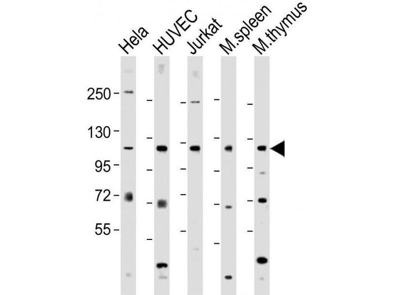 Western Blotting (WB) image for anti-DEAD (Asp-Glu-Ala-Asp) Box Polypeptide 58 (DDX58) (AA 894-925), (C-Term) antibody (ABIN388602)