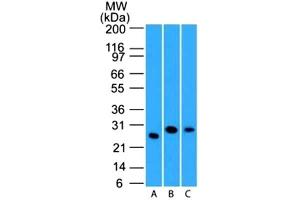 Western Blotting (WB) image for anti-LIF antibody (Leukemia Inhibitory Factor) (ABIN4330955)
