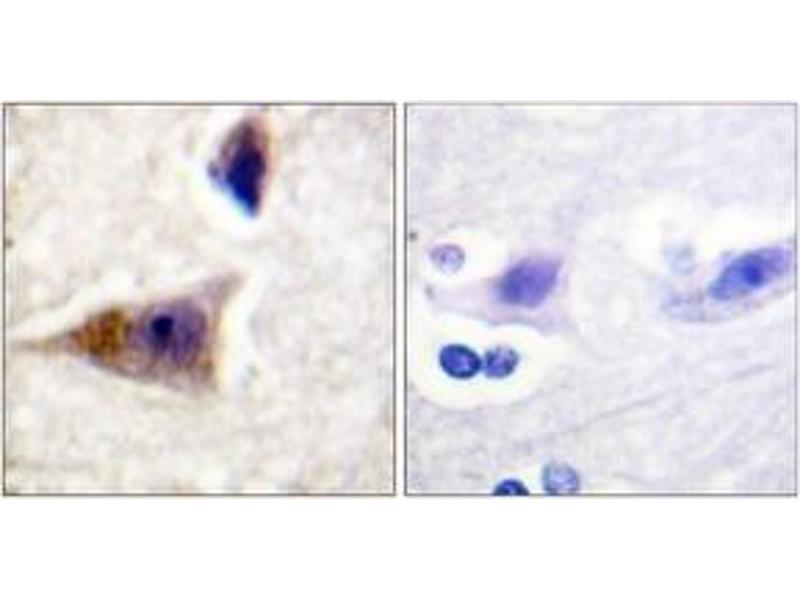 Immunohistochemistry (IHC) image for anti-Caspase 1 antibody (CASP1) (pSer376) (ABIN1531644)