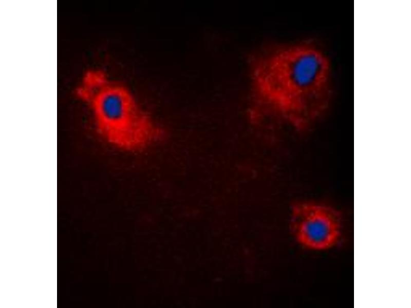 Immunofluorescence (IF) image for anti-TRAF Family Member-Associated NFKB Activator (TANK) (Center) antibody (ABIN2707137)