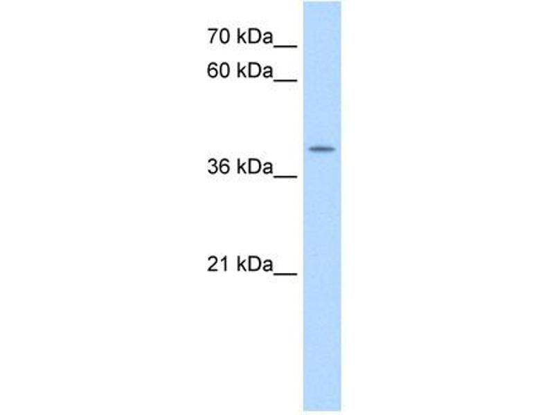 Western Blotting (WB) image for anti-Apolipoprotein B MRNA Editing Enzyme, Catalytic Polypeptide-Like 3B (APOBEC3B) (N-Term) antibody (ABIN2782492)