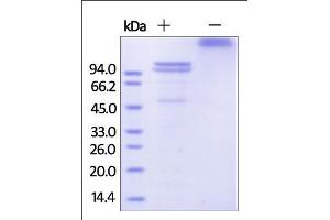 Image no. 1 for Cadherin 1, Type 1, E-Cadherin (Epithelial) (CDH1) (AA 23-621) (Active) protein (Fc Tag) (ABIN2444102)