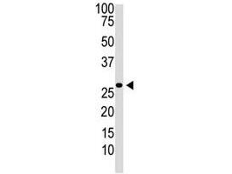 Image no. 1 for anti-Dickkopf 2 Homolog (Xenopus Laevis) (DKK2) (N-Term) antibody (ABIN357069)