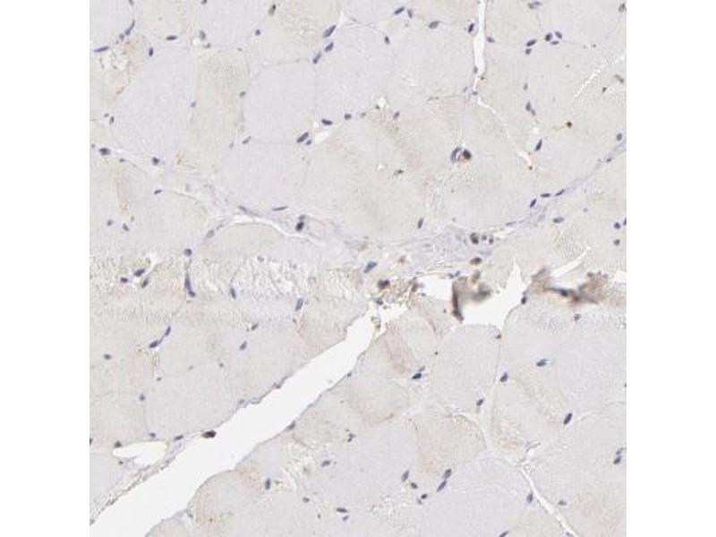 Immunohistochemistry (Paraffin-embedded Sections) (IHC (p)) image for anti-ATP-Binding Cassette, Sub-Family B (MDR/TAP), Member 1 (ABCB1) antibody (ABIN4333368)