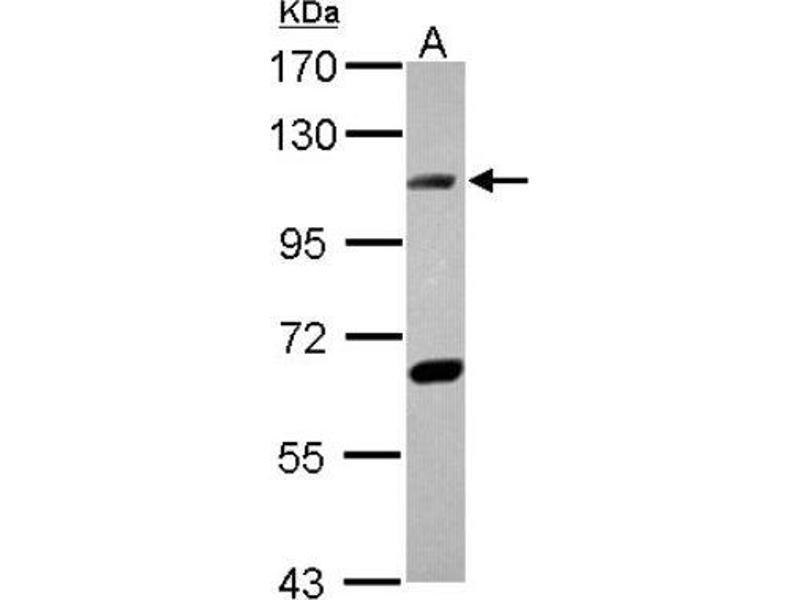 Western Blotting (WB) image for anti-Ligase IV, DNA, ATP-Dependent (LIG4) (C-Term) antibody (ABIN4305498)