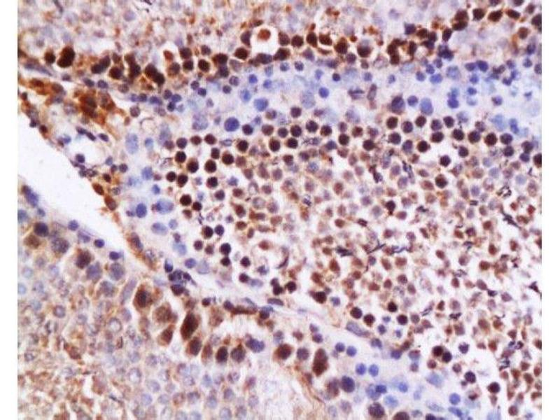 Immunohistochemistry (Paraffin-embedded Sections) (IHC (p)) image for anti-Caspase 12 (CASP12) (AA 240-290) antibody (ABIN737736)