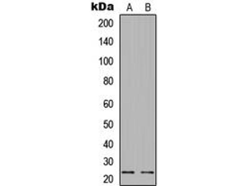Western Blotting (WB) image for anti-BCL2-Associated Agonist of Cell Death (BAD) (pSer112) antibody (ABIN2705561)