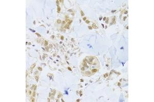 Immunohistochemistry (Paraffin-embedded Sections) (IHC (p)) image for anti-Minichromosome Maintenance Deficient 4 (MCM4) antibody (ABIN2974488)