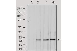 Image no. 4 for anti-Suppressor of Cytokine Signaling 2 (SOCS2) antibody (ABIN6265216)