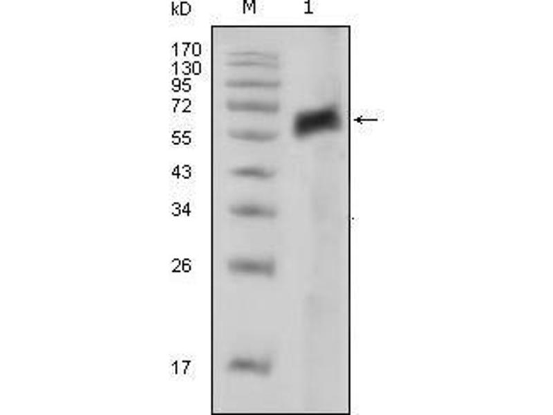 Western Blotting (WB) image for anti-AXL Receptor tyrosine Kinase (AXL) antibody (ABIN968974)