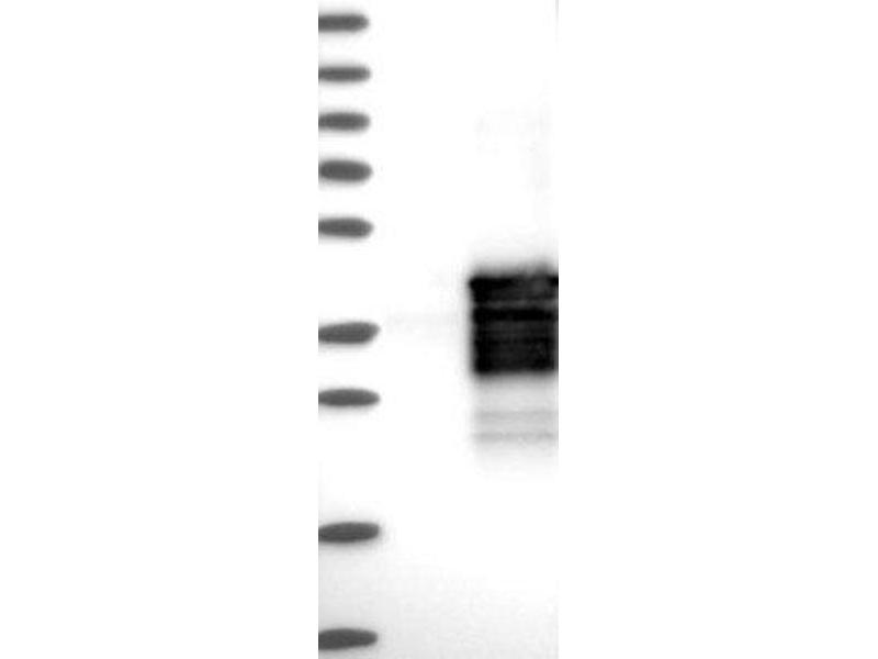 Western Blotting (WB) image for anti-SIX Homeobox 1 (SIX1) antibody (ABIN4353939)
