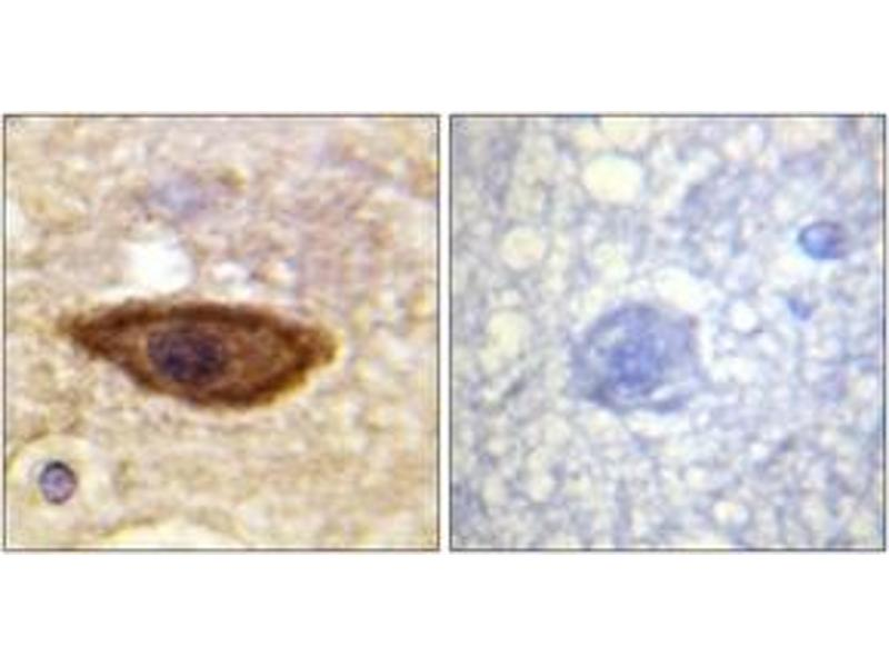 Immunohistochemistry (IHC) image for anti-Interferon (Alpha, beta and Omega) Receptor 1 (IFNAR1) (AA 436-485) antibody (ABIN1532631)
