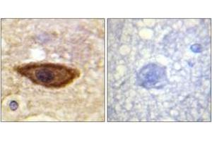 Immunohistochemistry (IHC) image for anti-IFNAR1 antibody (Interferon (Alpha, beta and Omega) Receptor 1) (ABIN1532631)