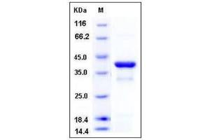 image for Nuclear Factor of kappa Light Polypeptide Gene Enhancer in B-Cells Inhibitor, alpha (NFKBIA) (AA 2-317) protein (His tag) (ABIN2004994)