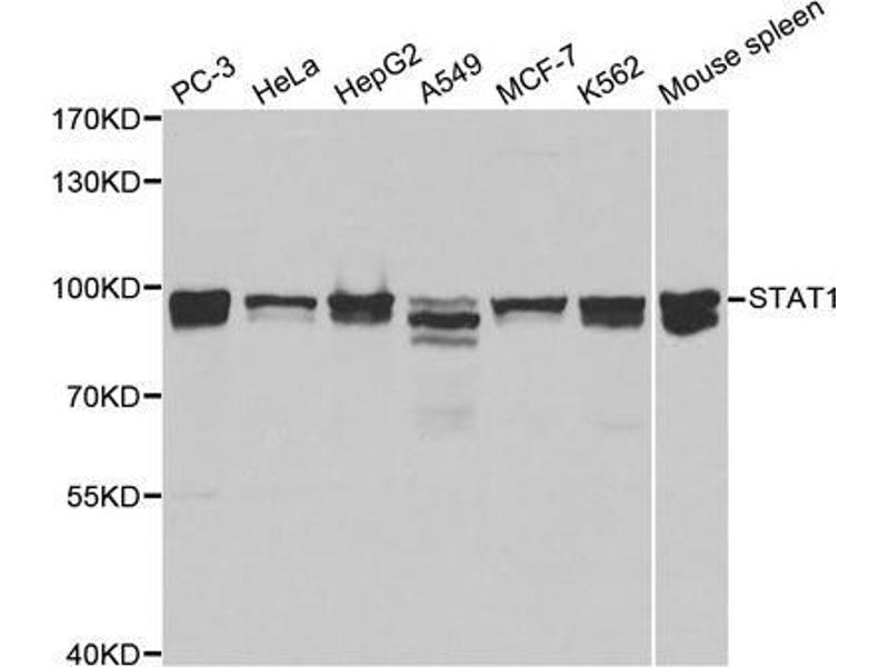 Western Blotting (WB) image for anti-Signal Transducer and Activator of Transcription 1, 91kDa (STAT1) antibody (ABIN3020615)