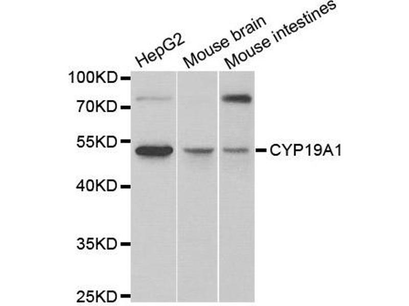 Western Blotting (WB) image for anti-Cytochrome P450, Family 19, Subfamily A, Polypeptide 1 (CYP19A1) antibody (ABIN1872157)