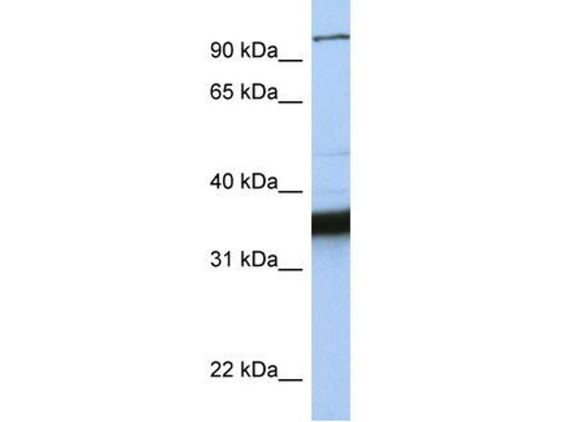 Western Blotting (WB) image for anti-Kinesin Family Member C3 (KIFC3) (C-Term) antibody (ABIN309720)