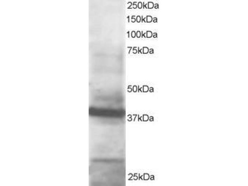Western Blotting (WB) image for anti-GIPC PDZ Domain Containing Family, Member 1 (GIPC1) (C-Term) antibody (ABIN250102)
