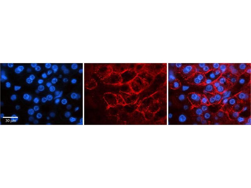 Immunohistochemistry (IHC) image for anti-Sodium Channel, Voltage-Gated, Type VIII, alpha (SCN8A) (C-Term) antibody (ABIN2776200)