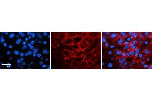 Image no. 3 for anti-Sodium Channel, Voltage-Gated, Type VIII, alpha (SCN8A) (C-Term) antibody (ABIN2776200)