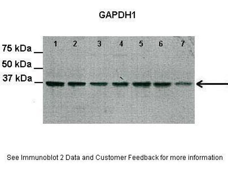 Western Blotting (WB) image for anti-GAPDH antibody (Glyceraldehyde-3-Phosphate Dehydrogenase) (Middle Region) (ABIN501932)