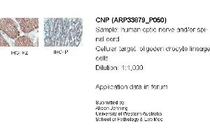 Image no. 2 for anti-2',3'-Cyclic Nucleotide 3' phosphodiesterase (CNP) (Middle Region) antibody (ABIN2778174)